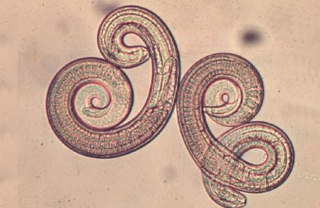 Resultado de imagen para triquinosis parasito